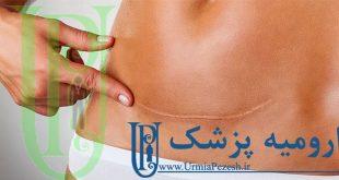 جراحی شکل دهی و طبیعی سازی فرم شکم در ارومیه