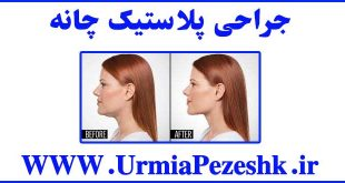 Chin Plastic Surgery
