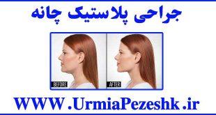 Chin Plastic Surgery